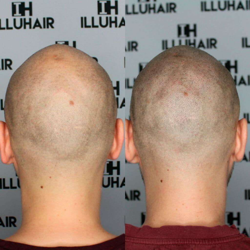 Alopecia areata fläckar skallighet