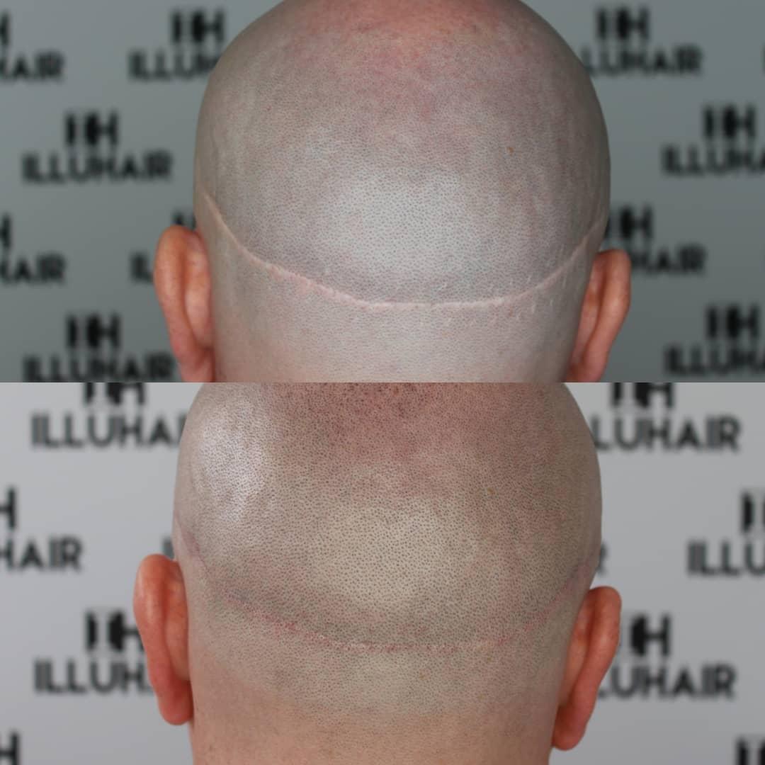 Täck ärr efter hårtransplantation