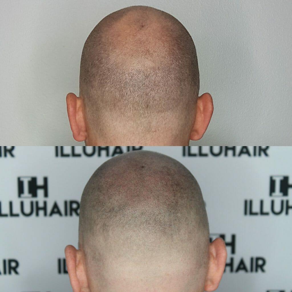 Scalp micropigmentation Illuhair