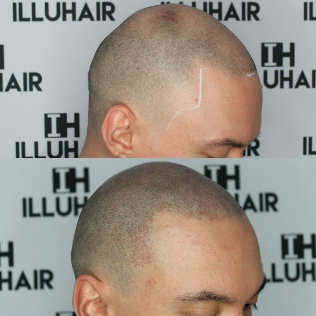 Effektiv behandling mot håravfall