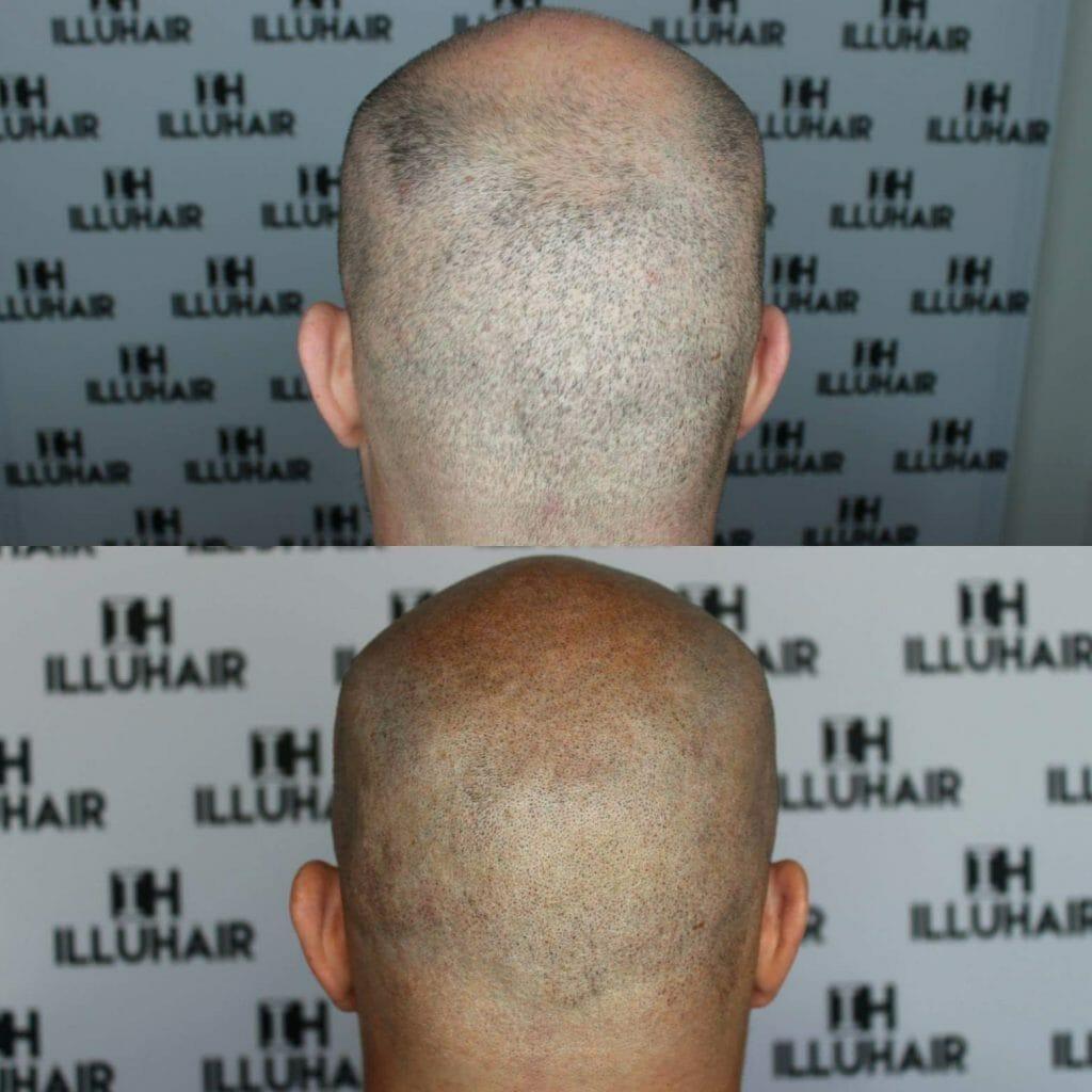 Effektiv behandling mot håravfall hos män