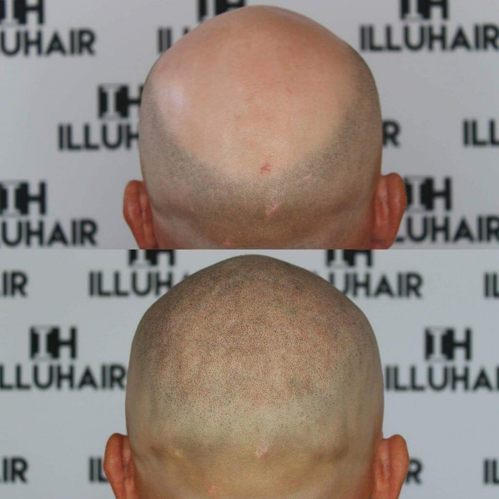 Skalligt isigt hårbottenpigmentering