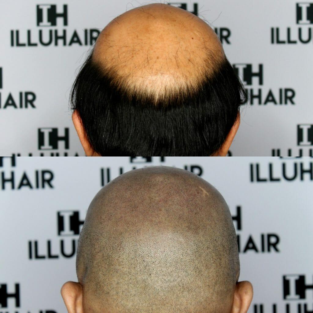 Illuhair scalp micropigmentation