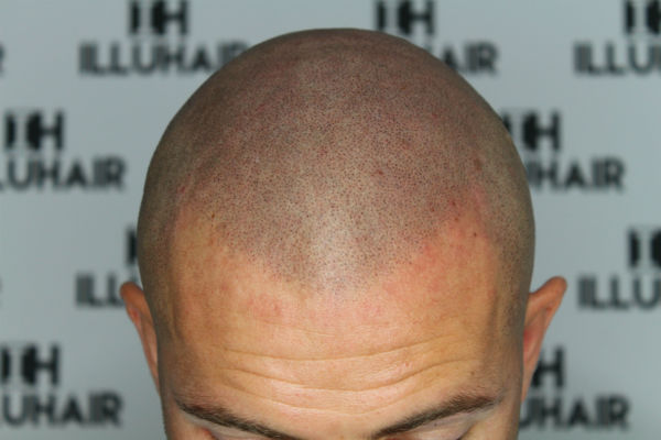 scalp micropigmentations behandlaren